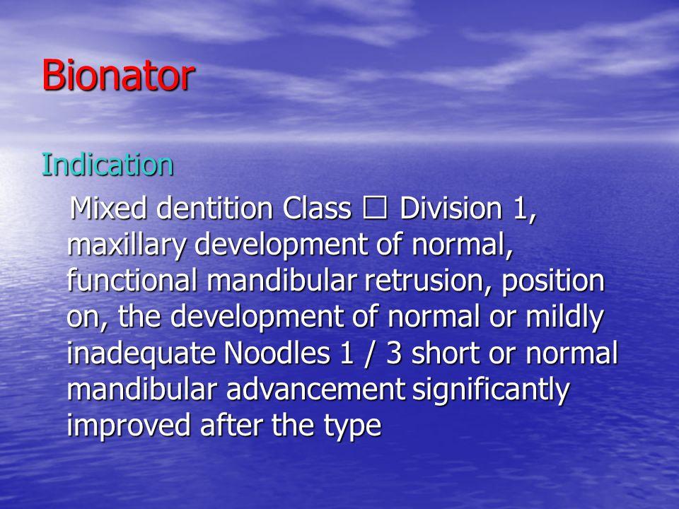 Bionator Indication.