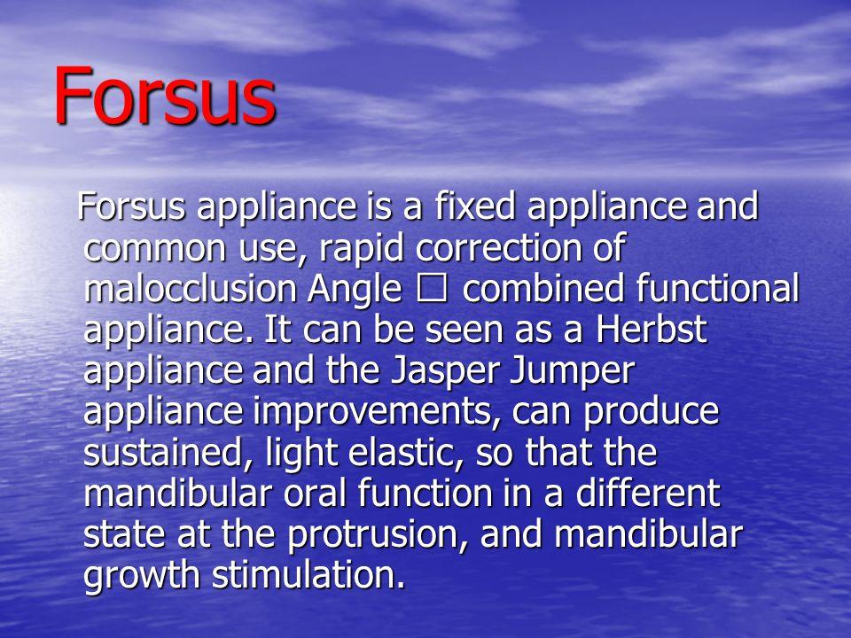 Forsus