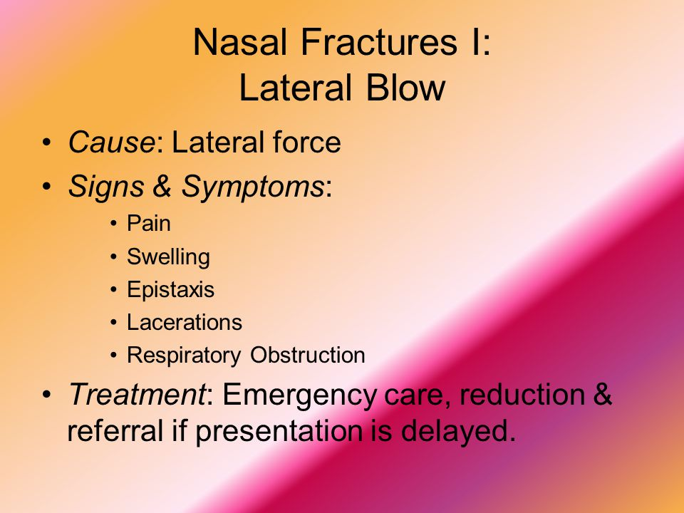 Nasal Fractures I: Lateral Blow