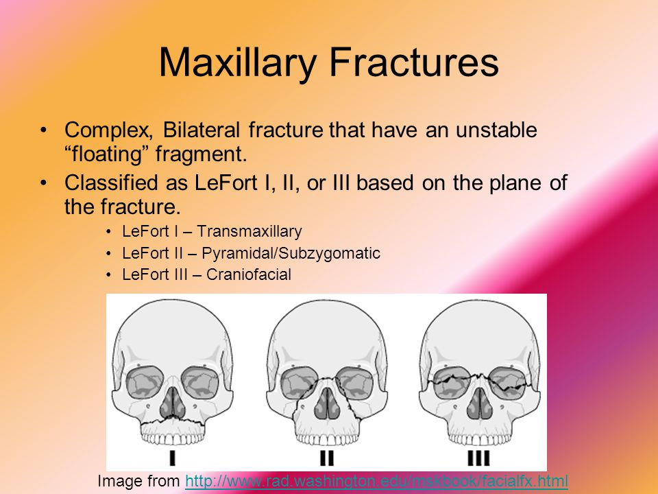 Maxillary Fractures Complex, Bilateral fracture that have an unstable floating fragment.
