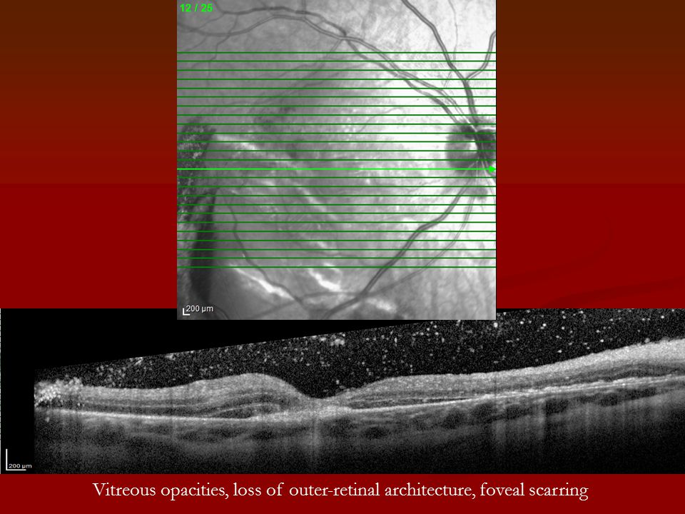 Vitreous opacities, loss of outer-retinal architecture, foveal scarring