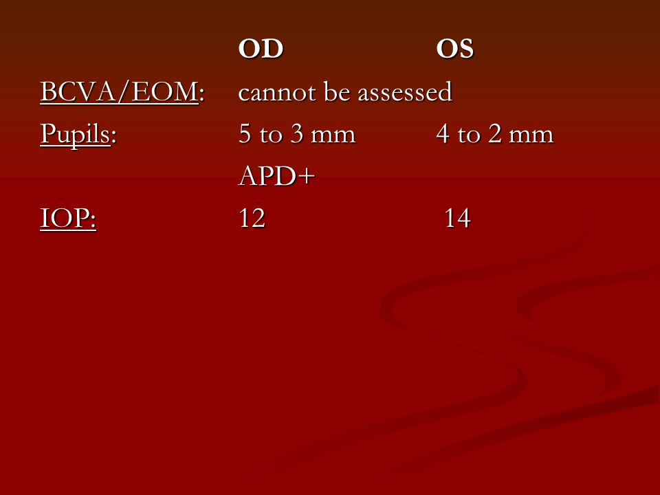 OD OS BCVA/EOM: cannot be assessed Pupils: 5 to 3 mm 4 to 2 mm APD+ IOP: 12 14