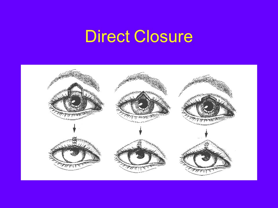 Direct Closure