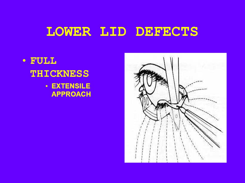 LOWER LID DEFECTS FULL THICKNESS EXTENSILE APPROACH