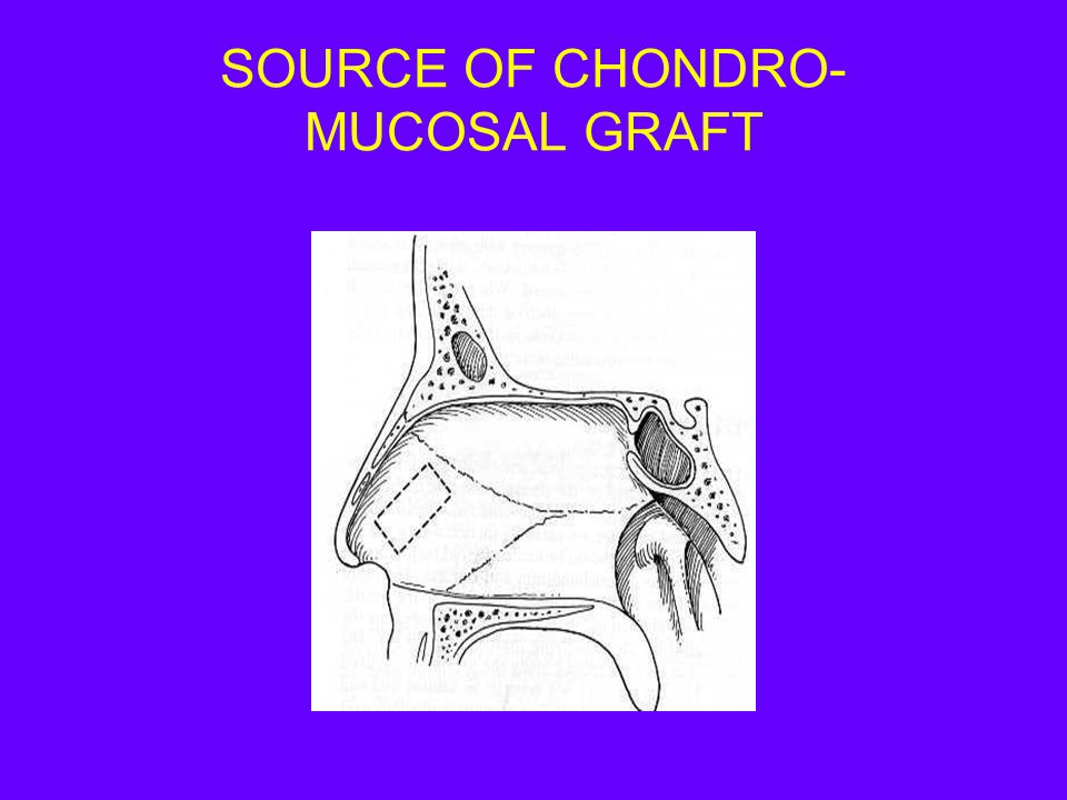 SOURCE OF CHONDRO- MUCOSAL GRAFT