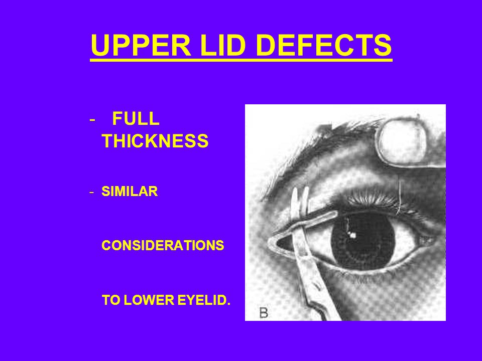 UPPER LID DEFECTS FULL THICKNESS