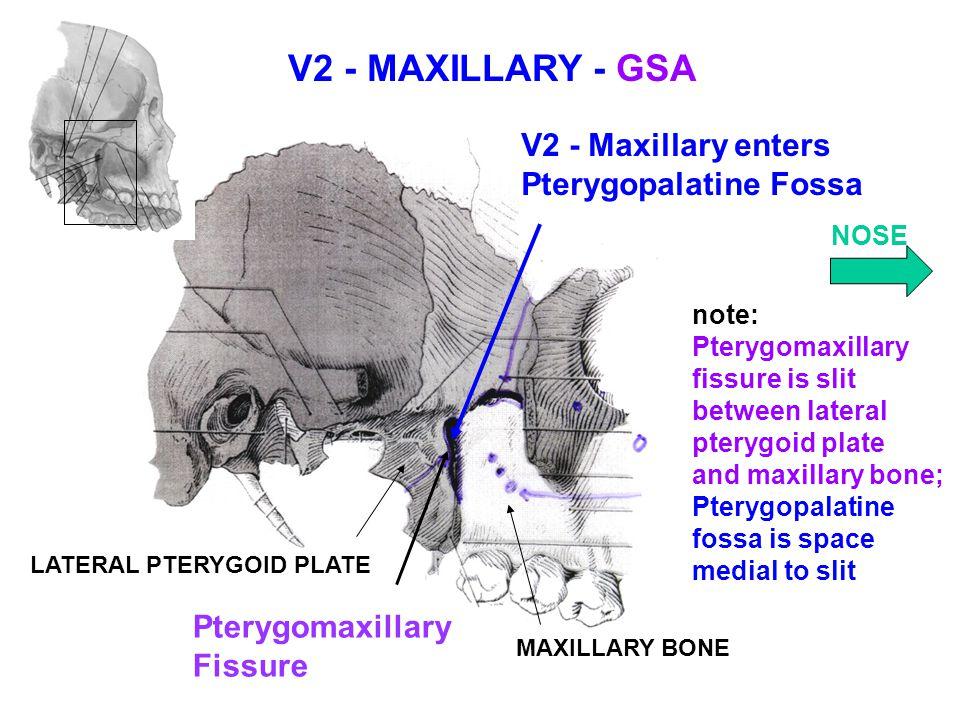 V2 - MAXILLARY - GSA V2 - Maxillary enters Pterygopalatine Fossa