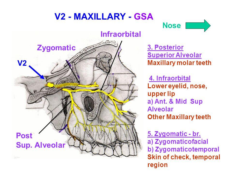 V2 - MAXILLARY - GSA Nose Infraorbital Zygomatic V2 Post Sup. Alveolar