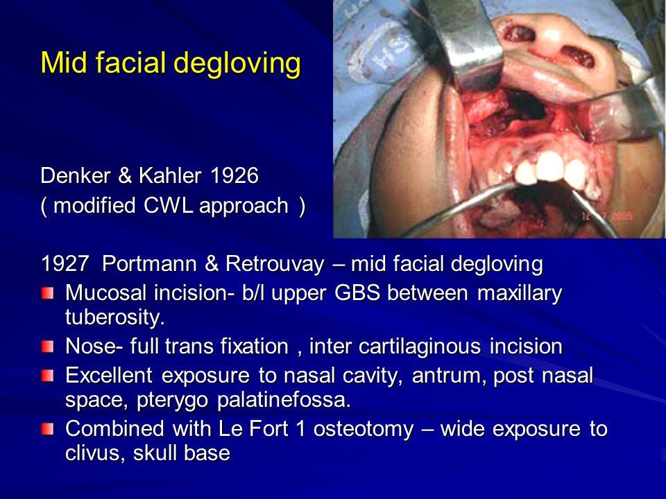 Mid facial degloving Denker & Kahler 1926 ( modified CWL approach )