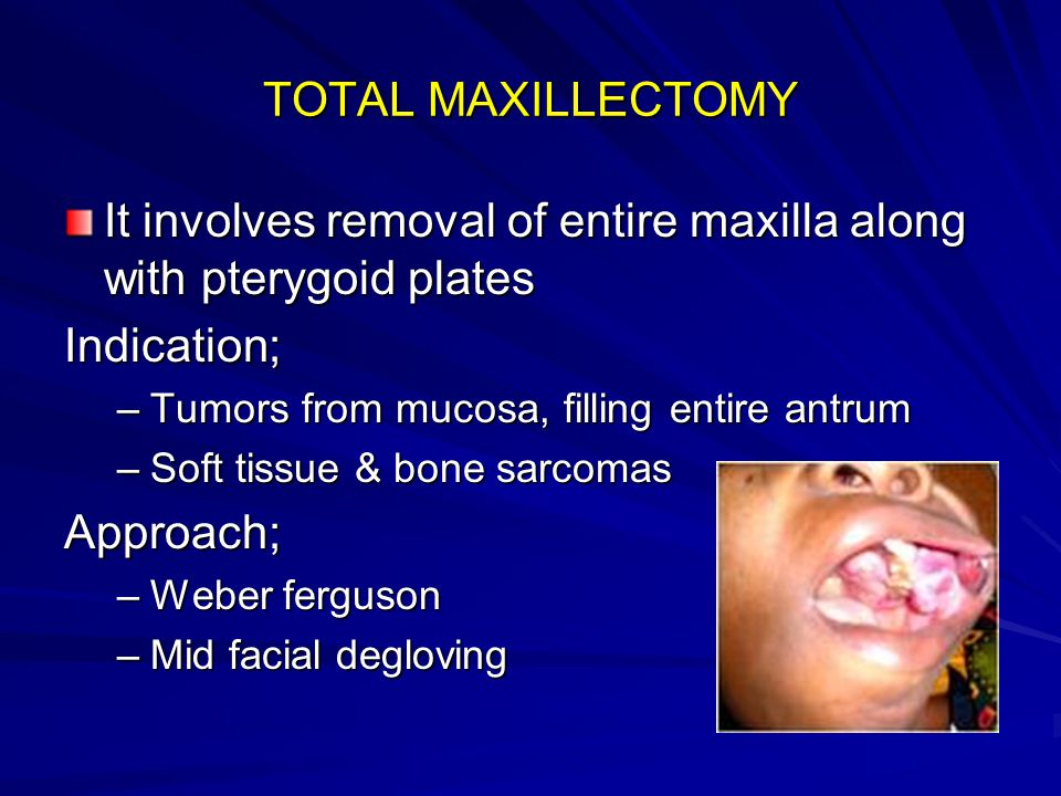 It involves removal of entire maxilla along with pterygoid plates