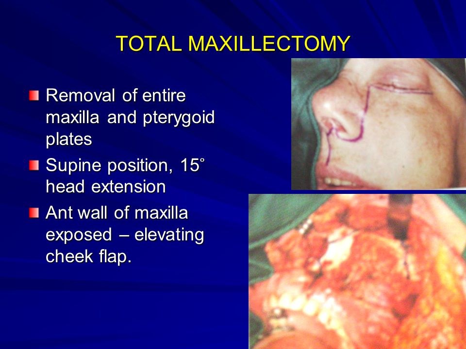 TOTAL MAXILLECTOMY Removal of entire maxilla and pterygoid plates