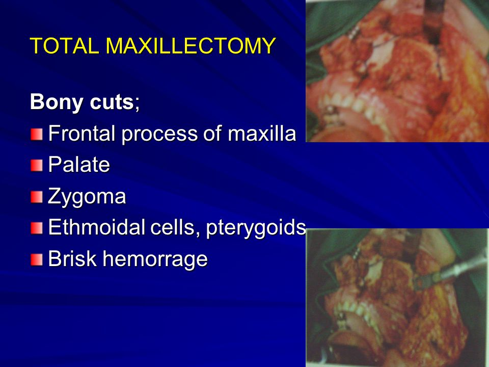 TOTAL MAXILLECTOMY Bony cuts; Frontal process of maxilla. Palate. Zygoma. Ethmoidal cells, pterygoids.