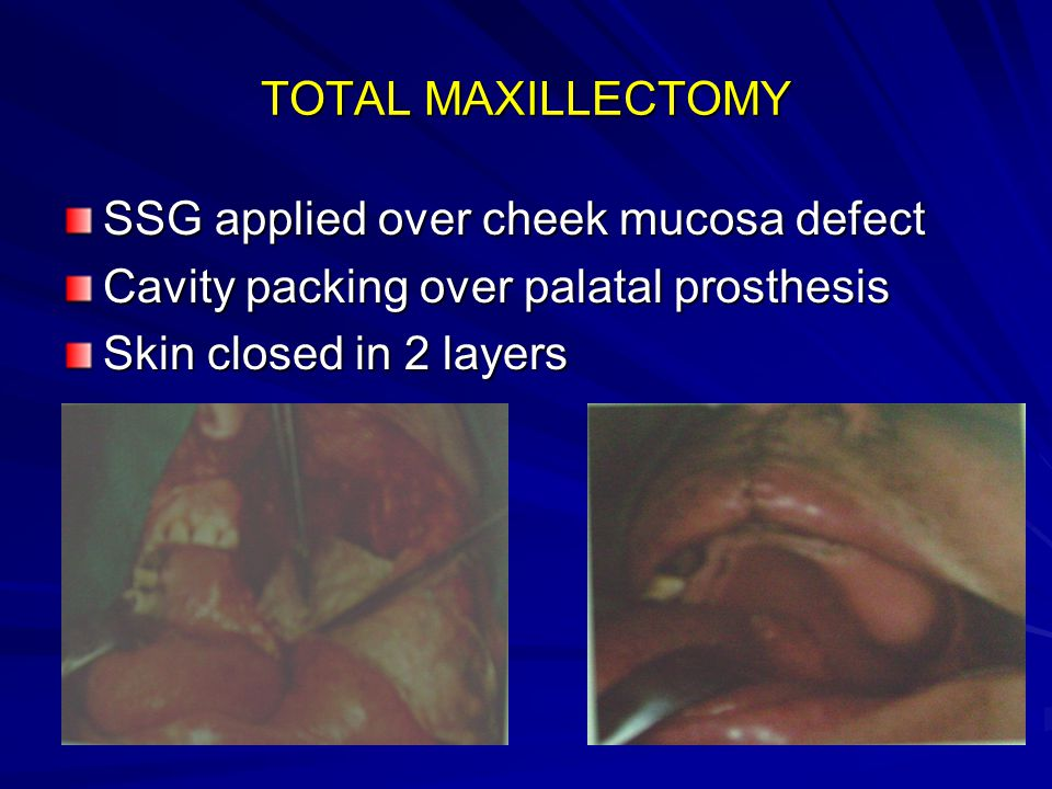 TOTAL MAXILLECTOMY SSG applied over cheek mucosa defect.