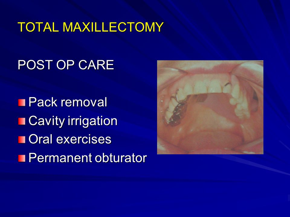 TOTAL MAXILLECTOMY POST OP CARE Pack removal Cavity irrigation Oral exercises Permanent obturator