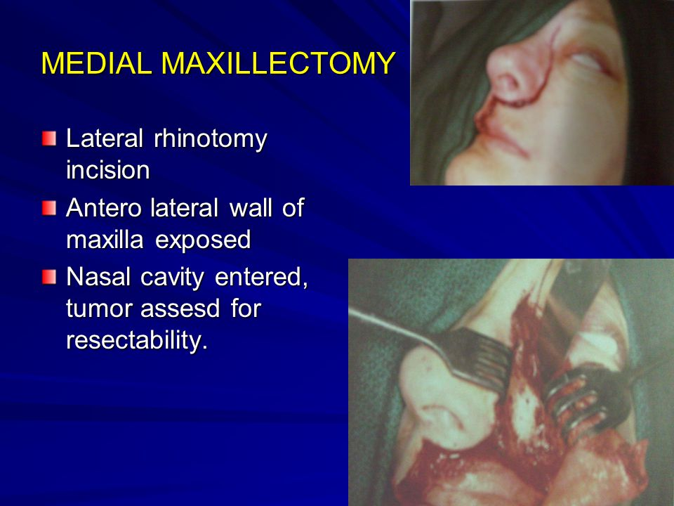 MEDIAL MAXILLECTOMY Lateral rhinotomy incision