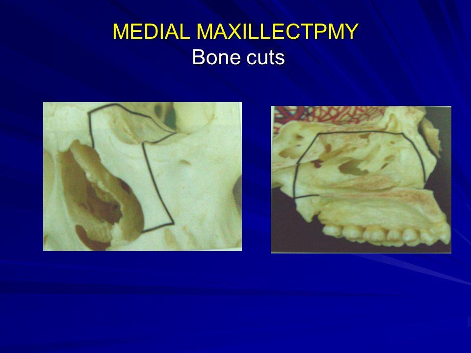 MEDIAL MAXILLECTPMY Bone cuts