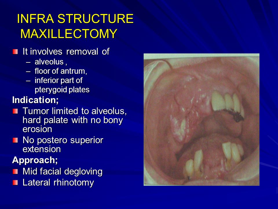 INFRA STRUCTURE MAXILLECTOMY