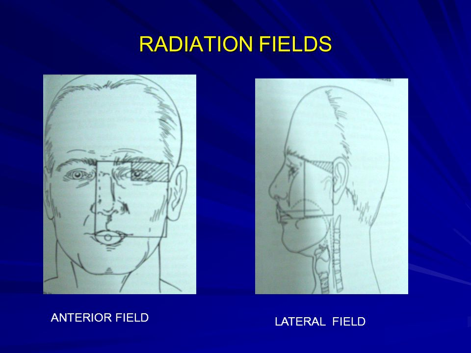 RADIATION FIELDS ANTERIOR FIELD LATERAL FIELD