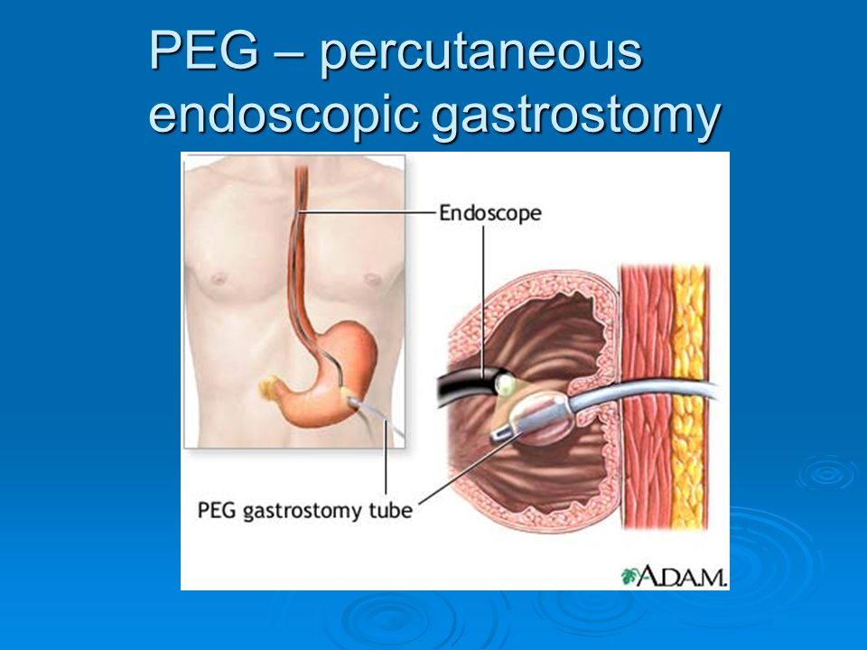 PEG – percutaneous endoscopic gastrostomy