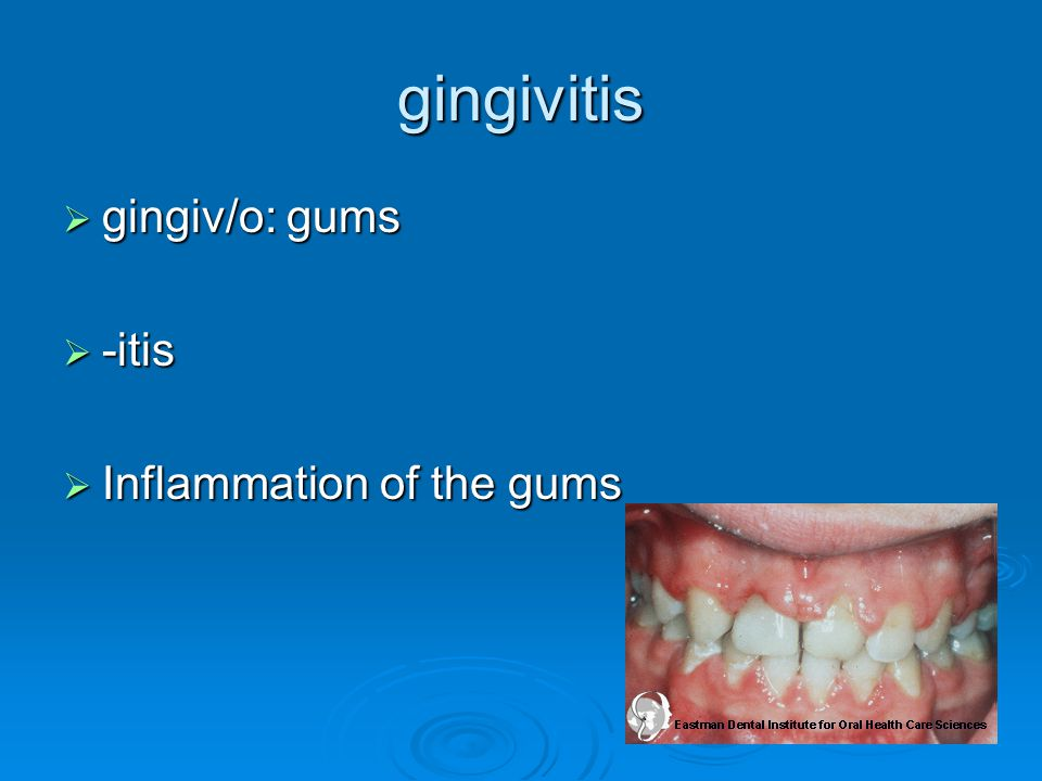 gingivitis gingiv/o: gums -itis Inflammation of the gums