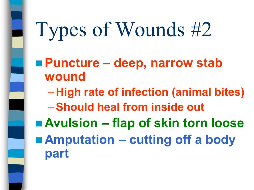 Types of Wounds #2 Puncture – deep, narrow stab wound