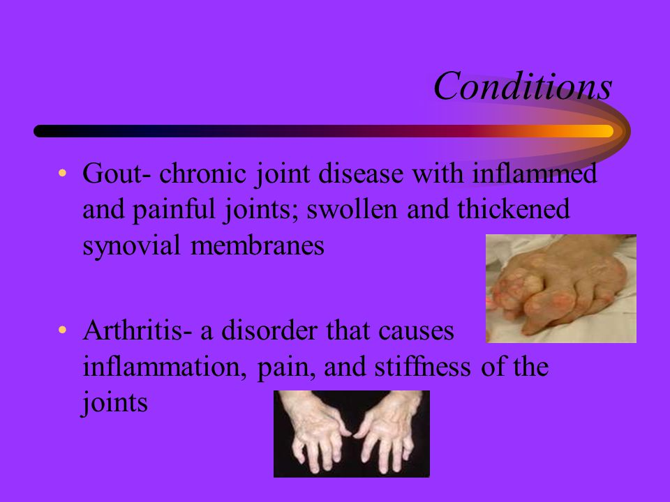 Conditions Gout- chronic joint disease with inflammed and painful joints; swollen and thickened synovial membranes.