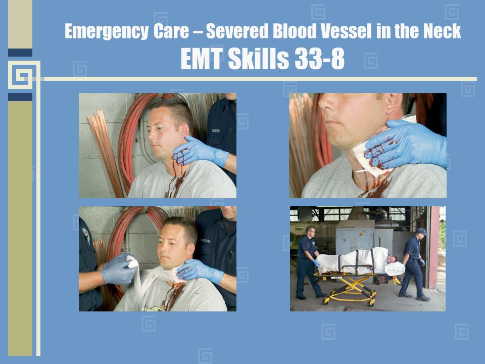 Emergency Care – Severed Blood Vessel in the Neck EMT Skills 33-8
