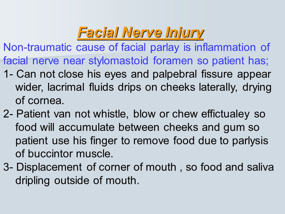 Facial Nerve Injury Non-traumatic cause of facial parlay is inflammation of facial nerve near stylomastoid foramen so patient has;