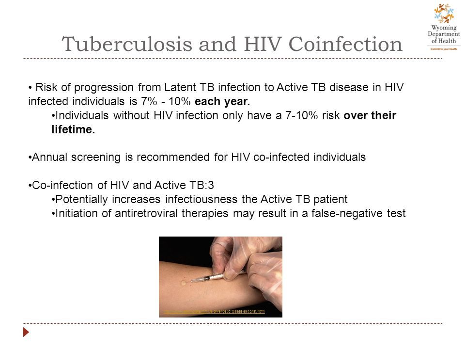 Tuberculosis and HIV Coinfection