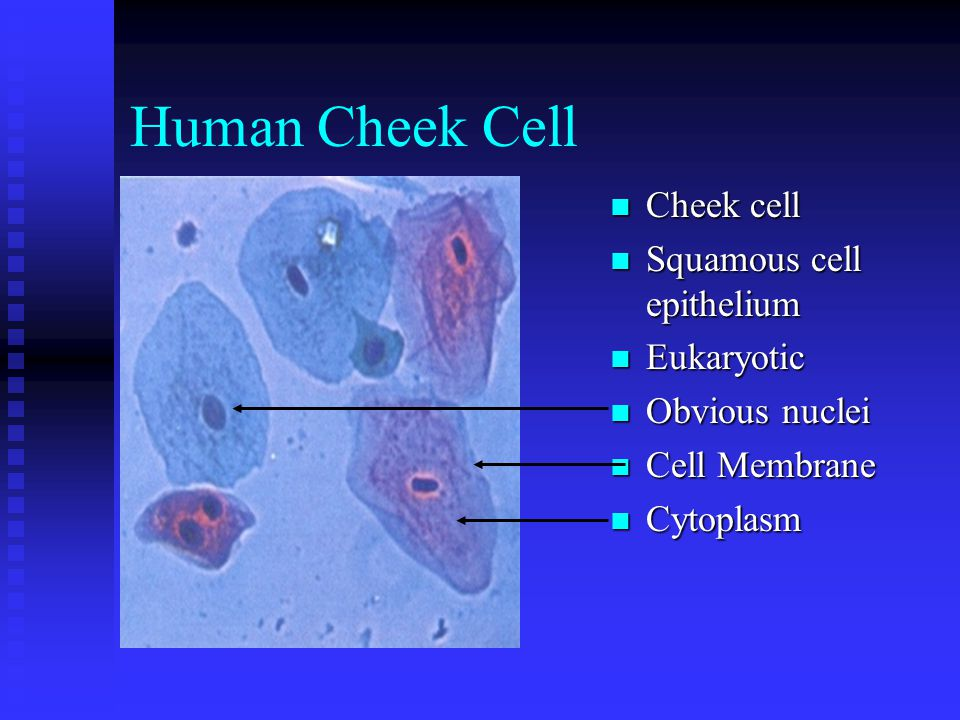 Human Cheek Cell Cheek cell Squamous cell epithelium Eukaryotic