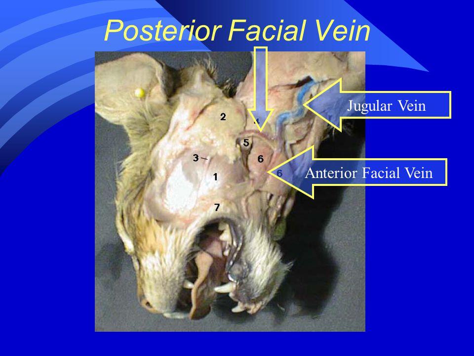 Posterior Facial Vein Jugular Vein Anterior Facial Vein