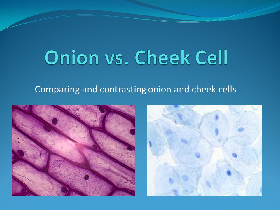 Comparing and contrasting onion and cheek cells
