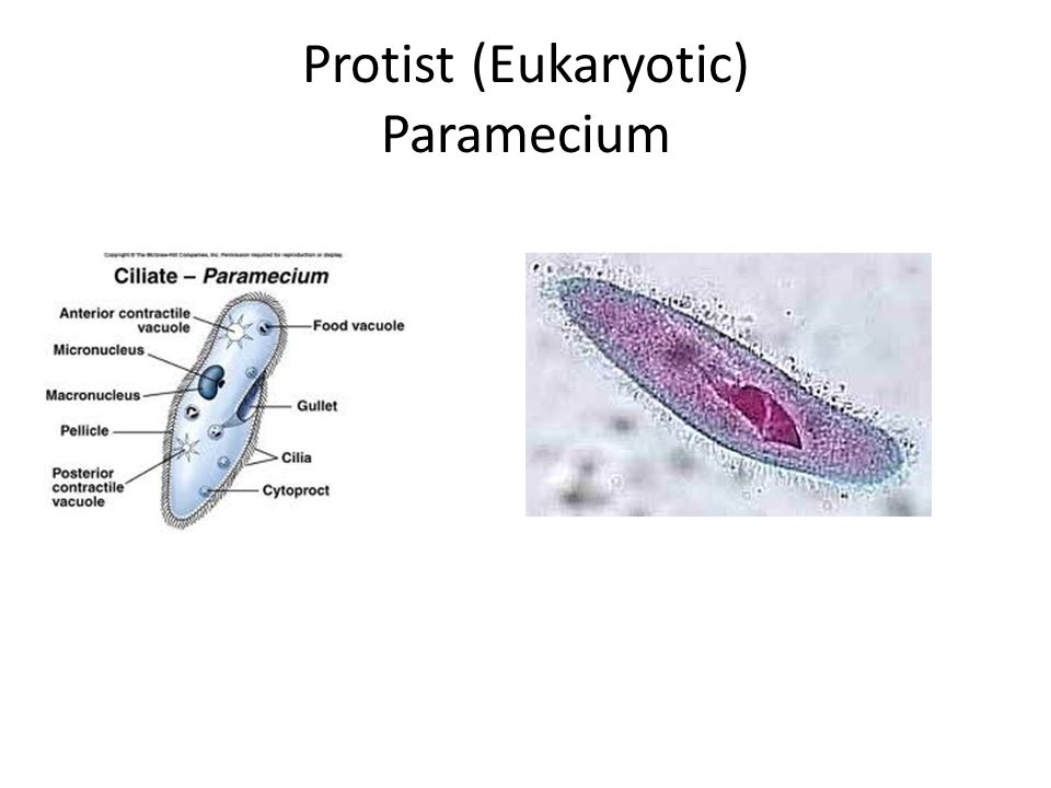 Protist (Eukaryotic) Paramecium