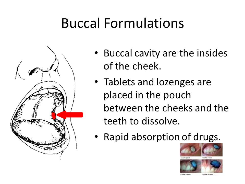 Buccal Formulations Buccal cavity are the insides of the cheek.