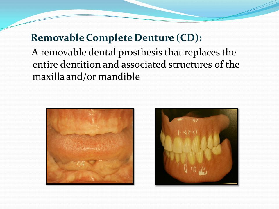 Removable Complete Denture (CD):