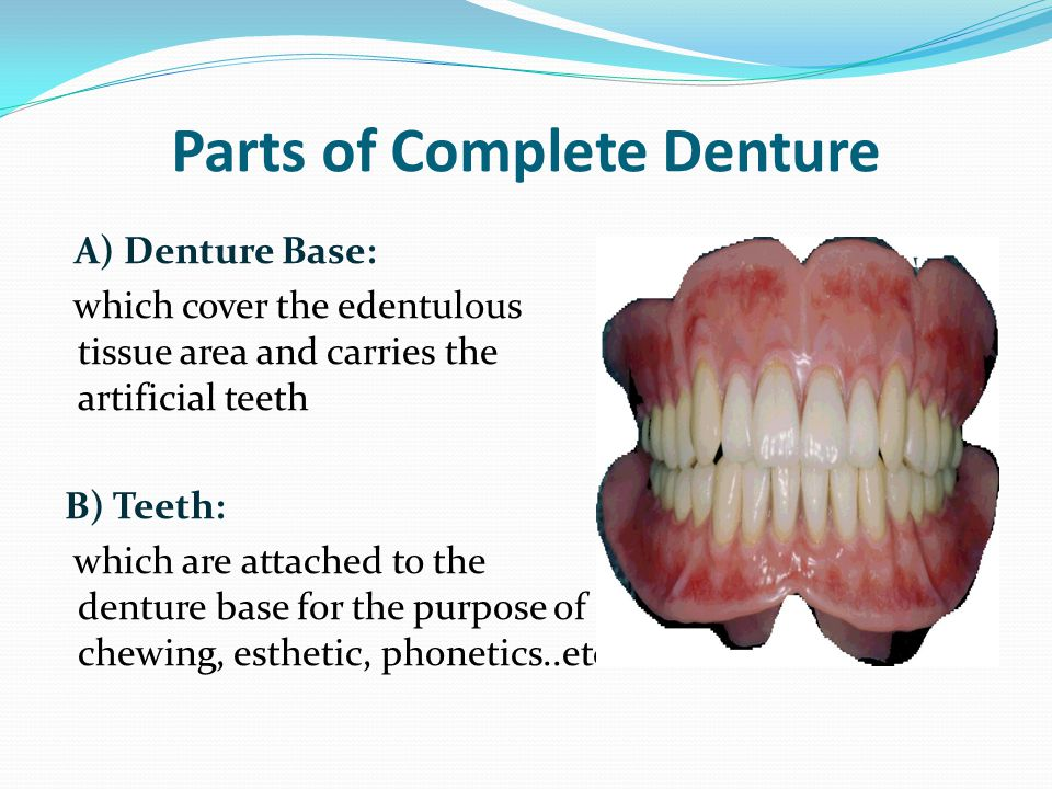 Parts of Complete Denture