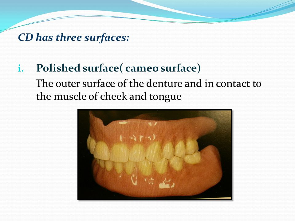 CD has three surfaces: Polished surface( cameo surface) The outer surface of the denture and in contact to the muscle of cheek and tongue.