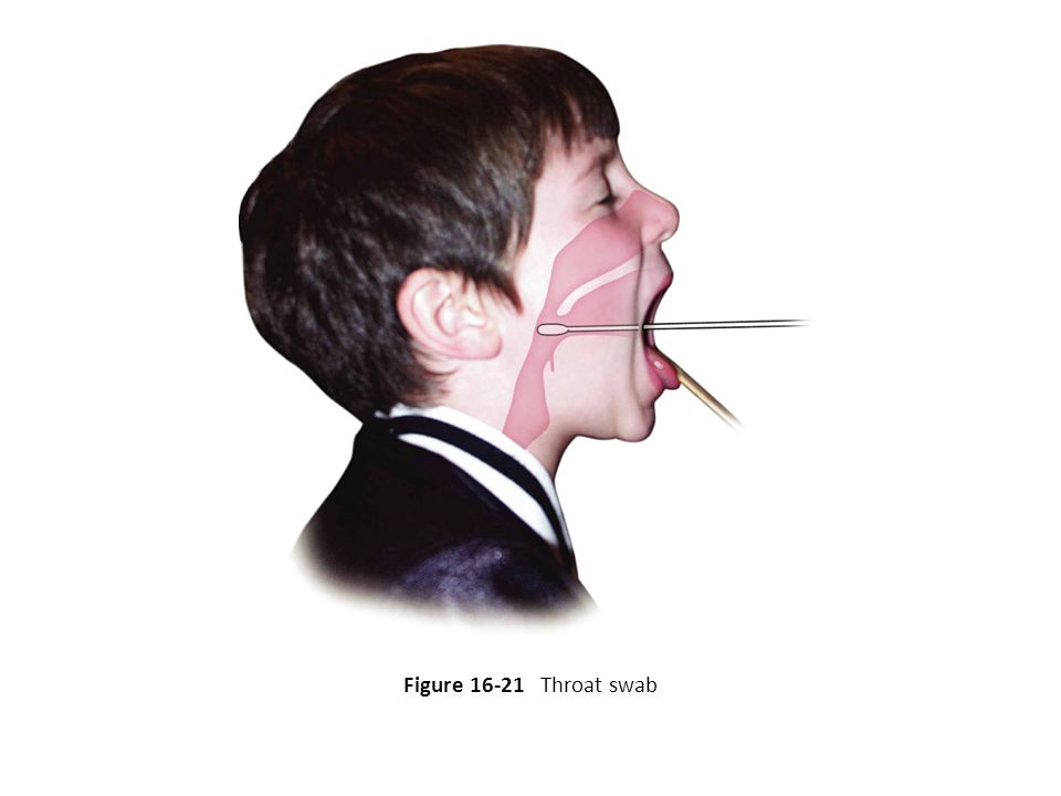 Figure 16-21 Throat swab 62