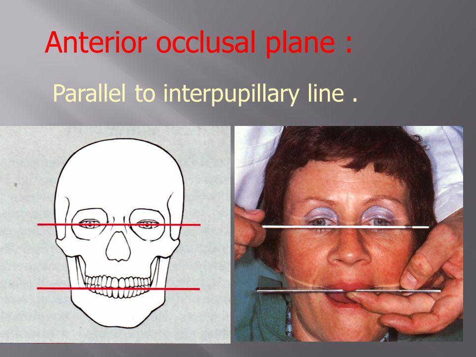 Anterior occlusal plane :
