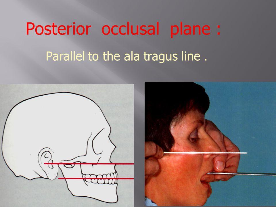 Posterior occlusal plane :