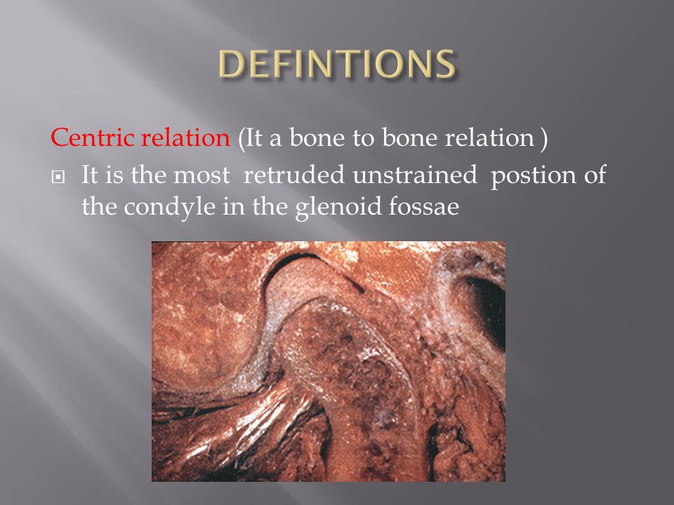 DEFINTIONS Centric relation (It a bone to bone relation )