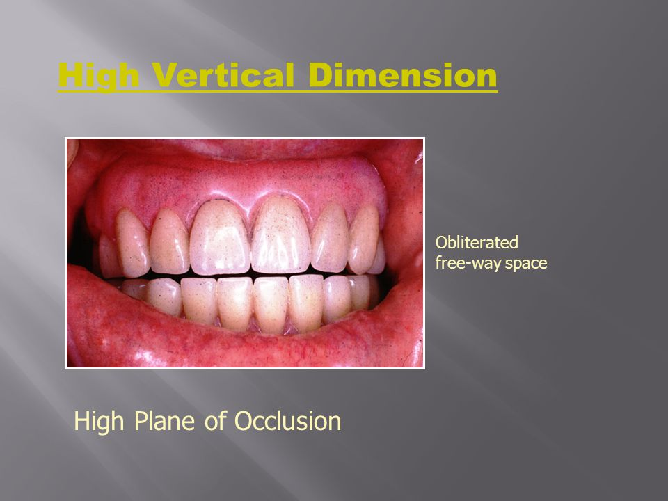 High Vertical Dimension