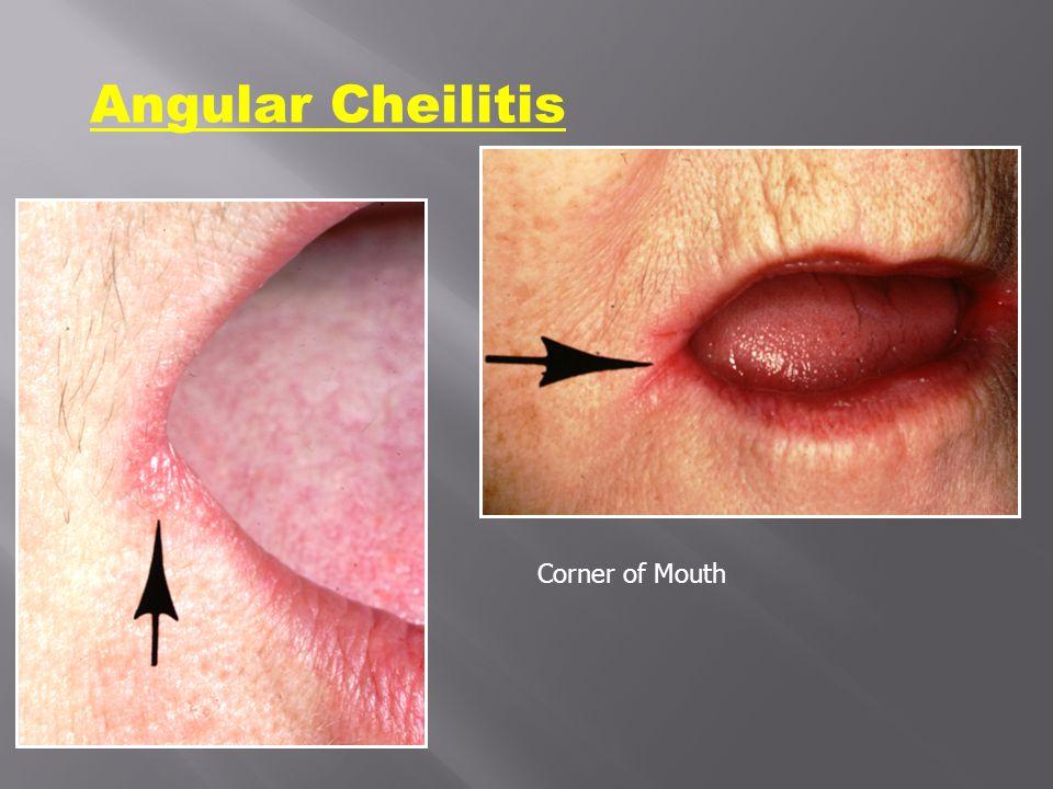 Angular Cheilitis Corner of Mouth