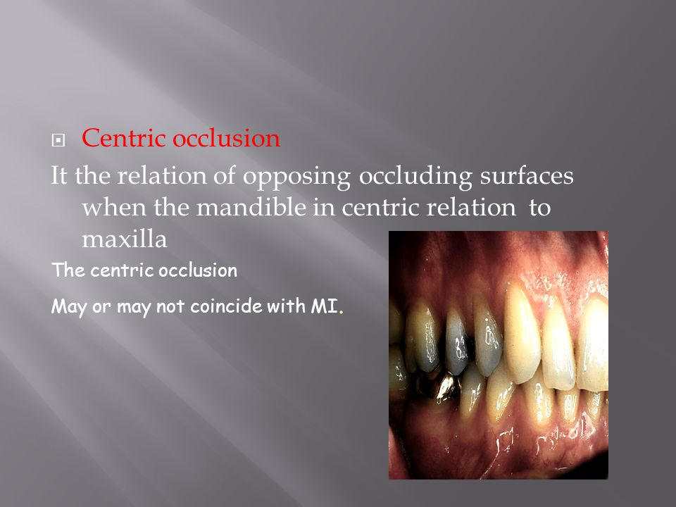 Centric occlusion It the relation of opposing occluding surfaces when the mandible in centric relation to maxilla.