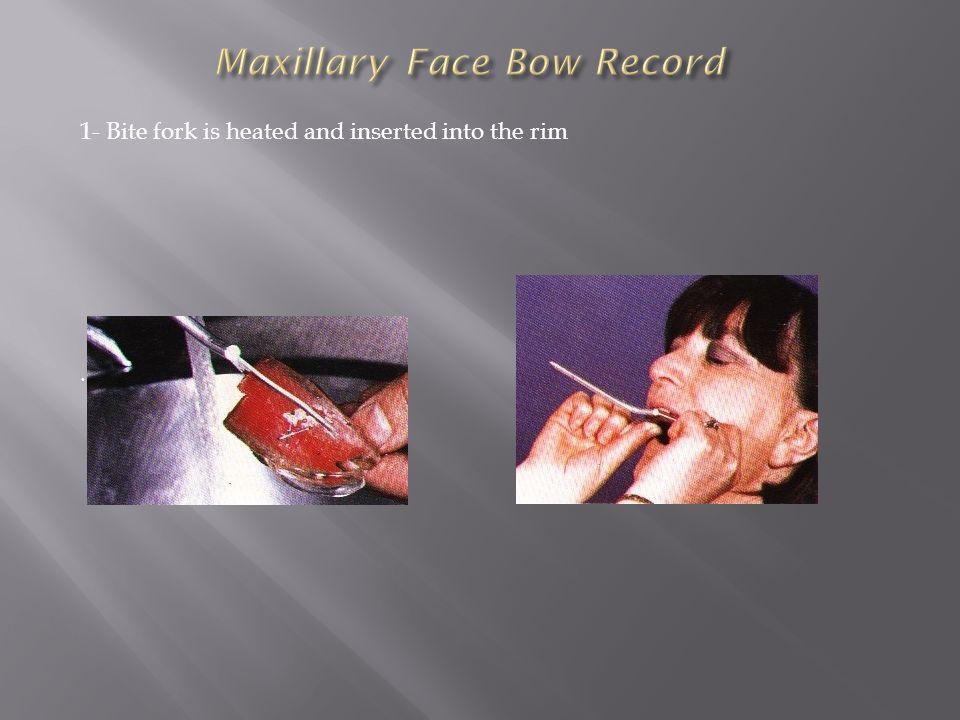 Maxillary Face Bow Record