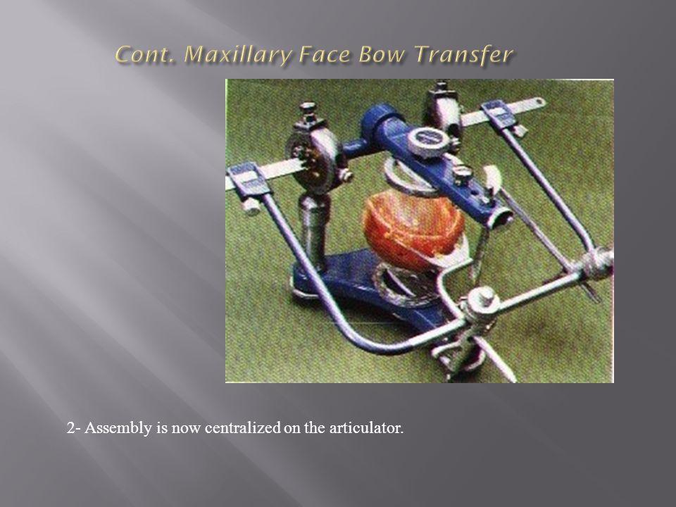 Cont. Maxillary Face Bow Transfer
