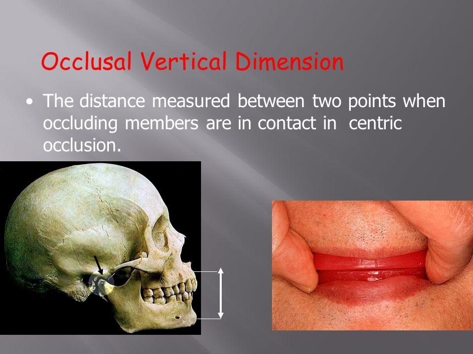 Occlusal Vertical Dimension