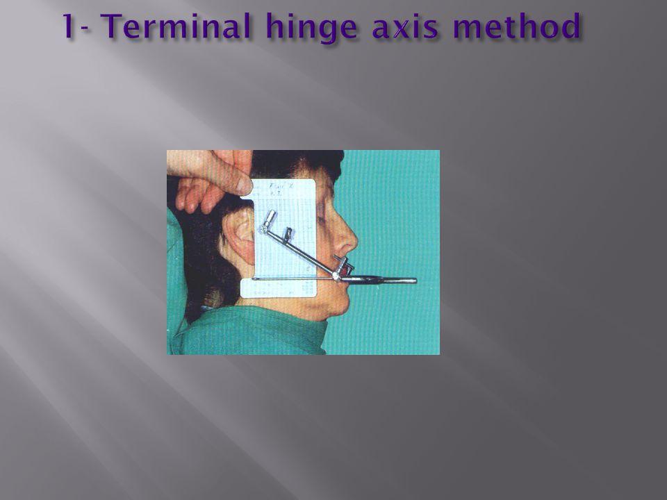 1- Terminal hinge axis method
