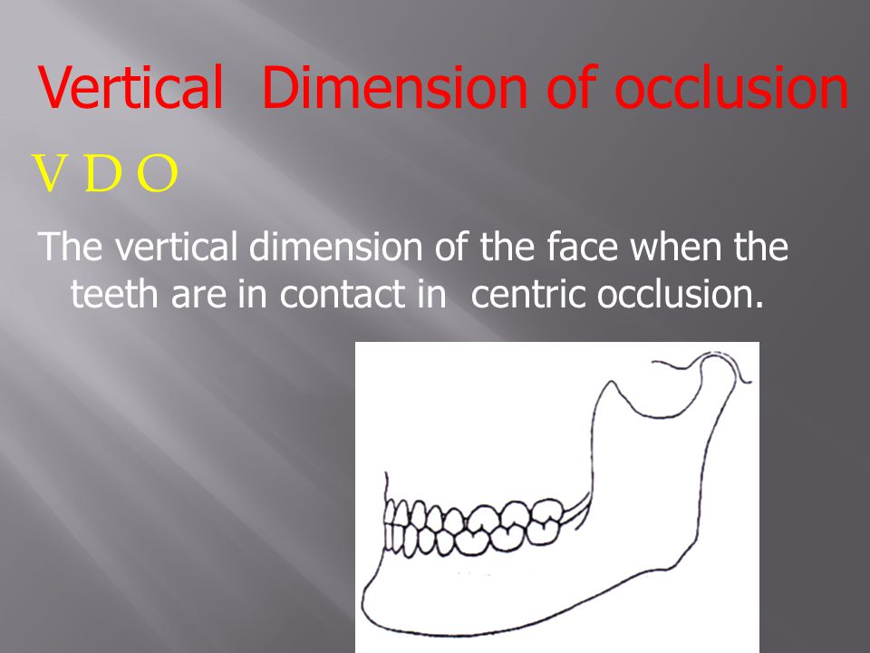 Vertical Dimension of occlusion