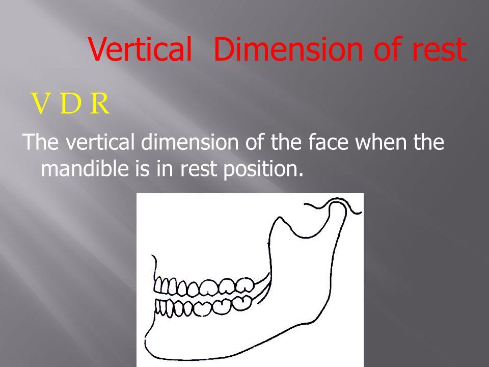 Vertical Dimension of rest
